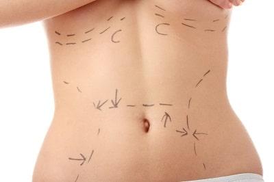 Medicina Estetica Madrid: Cirugia Abdominal