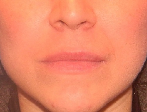 aumento de labios en madrid permalip
