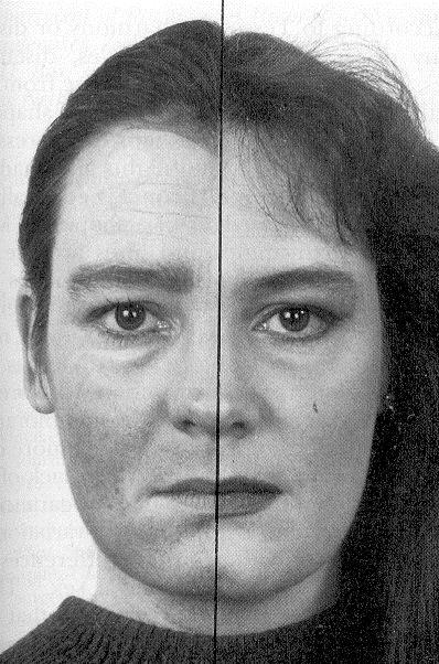 Resultado de imagen para TRAVESTIS  cirugía facial completa