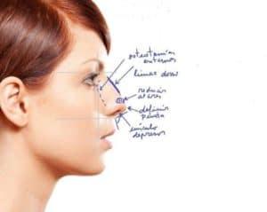 operacion de nariz en madrid