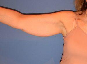 caso1-preoperatorio-braquiplastia