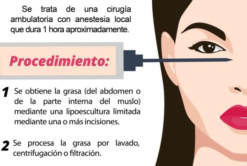 procedimiento de lipotransferencia en Madrid - Dr. Sarmentero