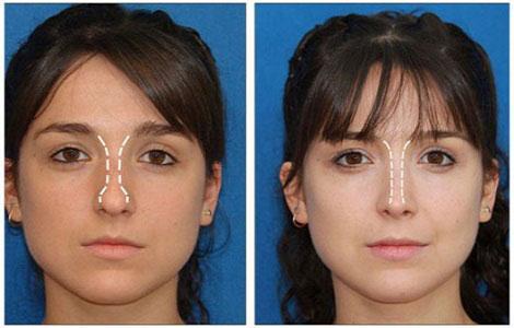 Rinoplastia - Cirugía Nariz