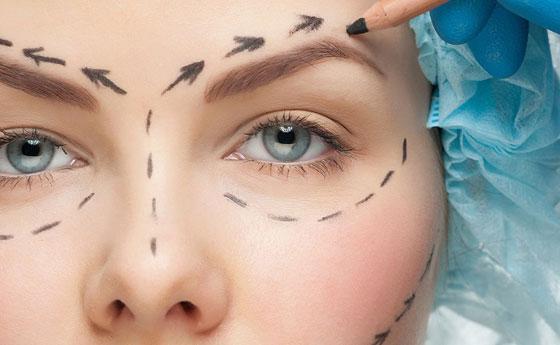 Operacion bolsas de los ojos